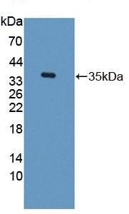 Western blot - Anti-Transketolase antibody (ab232819)