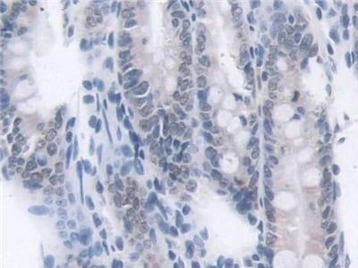 Immunohistochemistry (Formalin/PFA-fixed paraffin-embedded sections) - Anti-Transketolase antibody (ab232819)