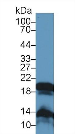 Western blot - Anti-GKN2 antibody (ab232821)