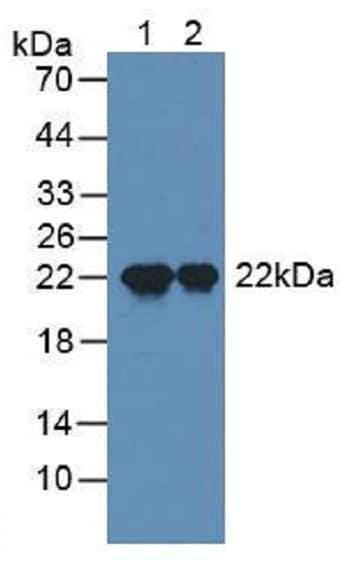 Western blot - Anti-SP17 antibody (ab232826)