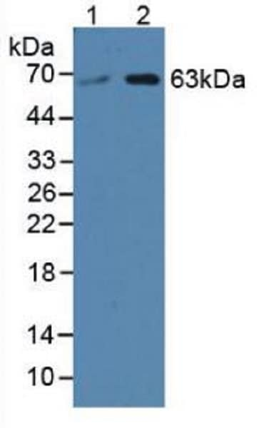 Western blot - Anti-SPTLC3 antibody (ab232829)