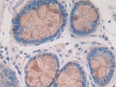 Immunohistochemistry (Formalin/PFA-fixed paraffin-embedded sections) - Anti-Cathepsin S antibody (ab232830)