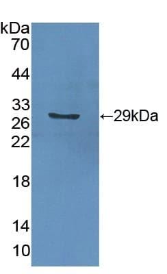 Western blot - Anti-GSTA2 antibody (ab232833)