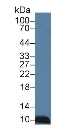 Western blot - Anti-CCL28/MEC antibody (ab232837)