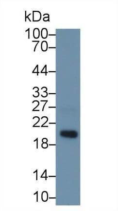 Western blot - Anti-MAGP2 antibody (ab232846)