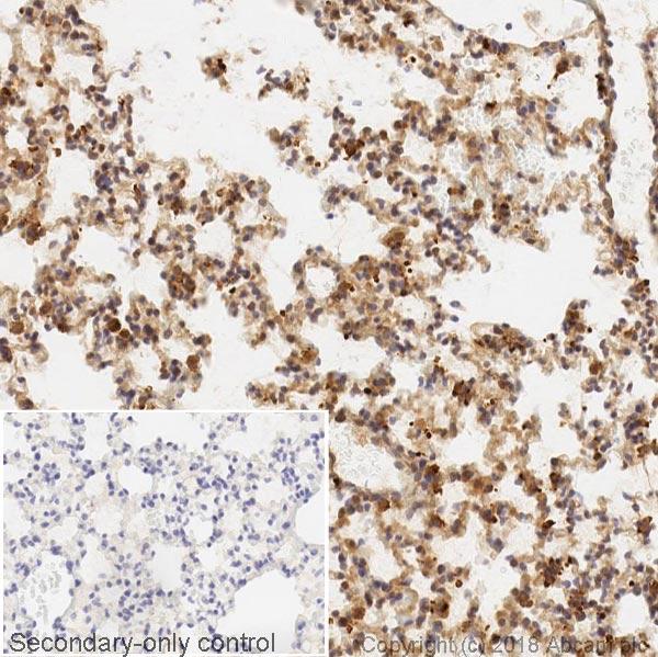 Immunohistochemistry (Formalin/PFA-fixed paraffin-embedded sections) - Anti-VEGFA antibody [EPR21220] (ab232858)