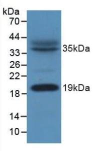 Western blot - Anti-NDUFAB1 antibody (ab232864)