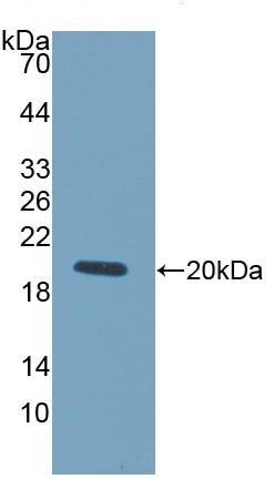 Western blot - Anti-LOXL4 antibody (ab232866)