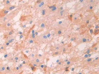 Immunohistochemistry (Formalin/PFA-fixed paraffin-embedded sections) - Anti-IgG4 antibody (ab232869)