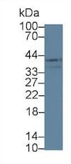 Western blot - Anti-LOXL3 antibody (ab232878)