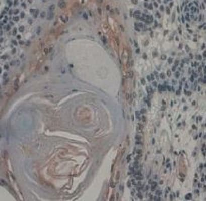 Immunohistochemistry (Formalin/PFA-fixed paraffin-embedded sections) - Anti-VE Cadherin antibody (ab232880)