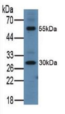 Western blot - Anti-ITLN1 antibody (ab232885)