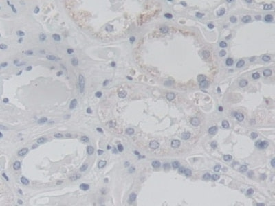Immunohistochemistry (Formalin/PFA-fixed paraffin-embedded sections) - Anti-AK3 antibody (ab232888)