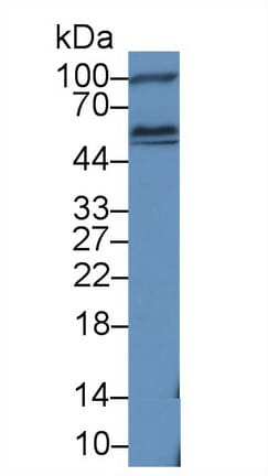 Western blot - Anti-HEXA antibody (ab232889)