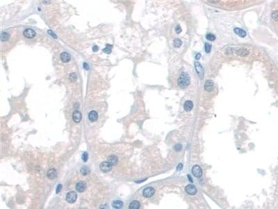 Immunohistochemistry (Formalin/PFA-fixed paraffin-embedded sections) - Anti-p60 katanin antibody (ab232891)