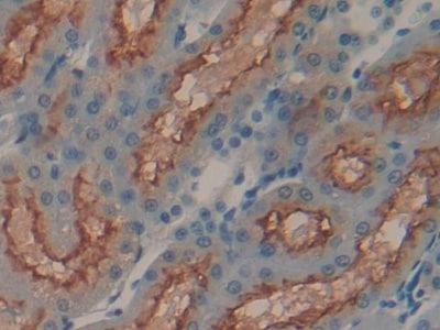 Immunohistochemistry (Formalin/PFA-fixed paraffin-embedded sections) - Anti-Meprin alpha antibody (ab232892)