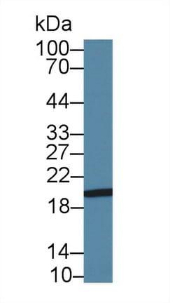 Western blot - Anti-H Cadherin antibody (ab232893)