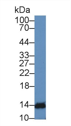 Western blot - Anti-IFNA4 antibody (ab232899)