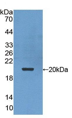 Western blot - Anti-Proteasome maturation protein antibody (ab232900)