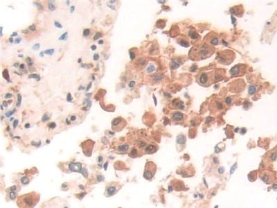 Immunohistochemistry (Formalin/PFA-fixed paraffin-embedded sections) - Anti-GILT antibody (ab232915)