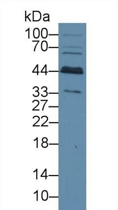 Western blot - Anti-BCAT1 antibody (ab232918)