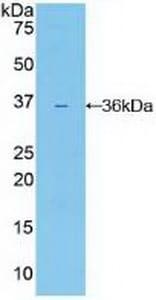 Western blot - Anti-IL-22RA1 antibody (ab232925)