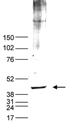 Western blot - Anti-p53 antibody (ab232930)