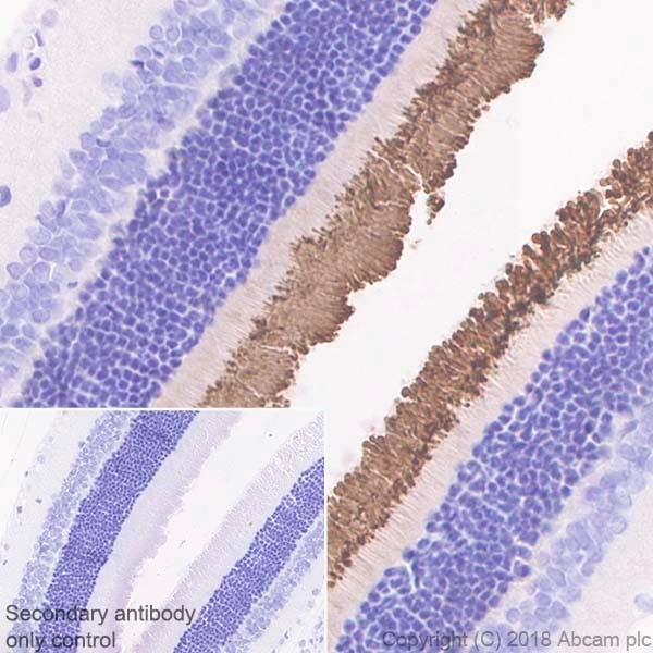 Immunohistochemistry (Formalin/PFA-fixed paraffin-embedded sections) - Anti-Rhodopsin antibody [EPR21876] - BSA and Azide free (ab232934)