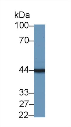 Western blot - Anti-Tropomodulin 3 antibody (ab232946)