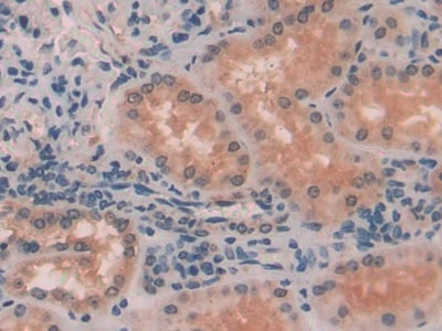 Immunohistochemistry (Formalin/PFA-fixed paraffin-embedded sections) - Anti-Myosin light chain kinase/MLCK antibody (ab232949)
