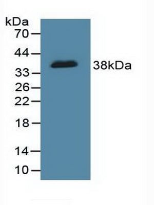 Western blot - Anti-ICAD antibody (ab232957)