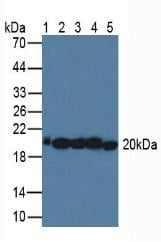 Western blot - Anti-MnSOD antibody (ab232961)
