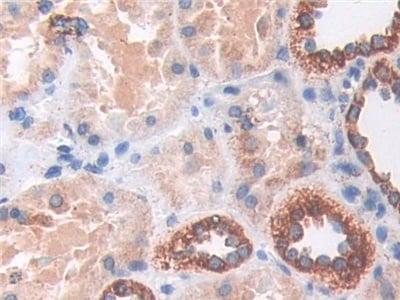 Immunohistochemistry (Formalin/PFA-fixed paraffin-embedded sections) - Anti-MnSOD antibody (ab232961)