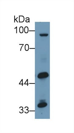 Western blot - Anti-GPT2 antibody (ab232963)