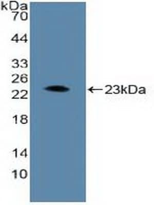 Western blot - Anti-HIF1 beta antibody (ab232964)