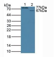 Western blot - Anti-GALC antibody (ab232972)