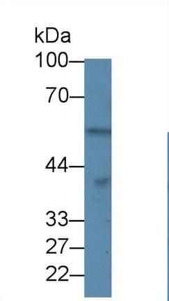 Western blot - Anti-PPP1A/PPP1CA antibody (ab232978)