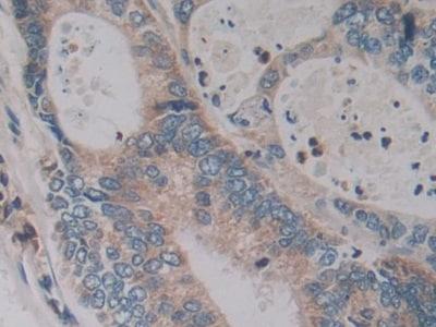 Immunohistochemistry (Formalin/PFA-fixed paraffin-embedded sections) - Anti-Kallikrein 2/KLK2 antibody (ab232980)