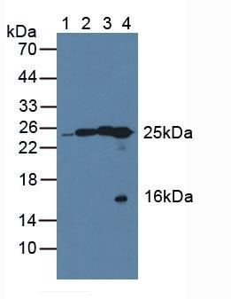 Western blot - Anti-QDPR/DHPR antibody (ab232983)