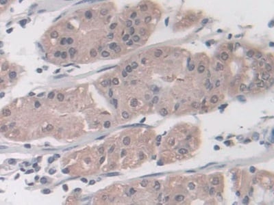 Immunohistochemistry (Formalin/PFA-fixed paraffin-embedded sections) - Anti-Proteasome 20S LMP7 antibody (ab232984)