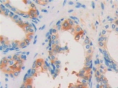 Immunohistochemistry (Formalin/PFA-fixed paraffin-embedded sections) - Anti-ISLR antibody (ab232986)