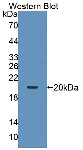 Western blot - Anti-RNF22 antibody (ab232988)