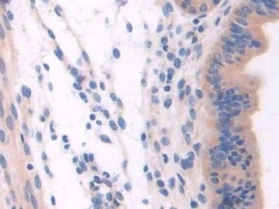 Immunohistochemistry (Formalin/PFA-fixed paraffin-embedded sections) - Anti-NSP 5 alpha 3 alpha antibody (ab232996)