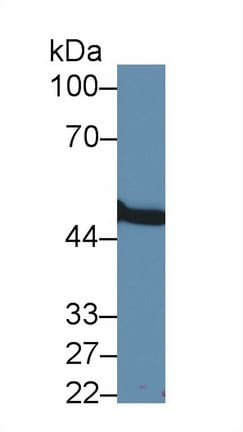 Western blot - Anti-MMP24 antibody (ab233004)