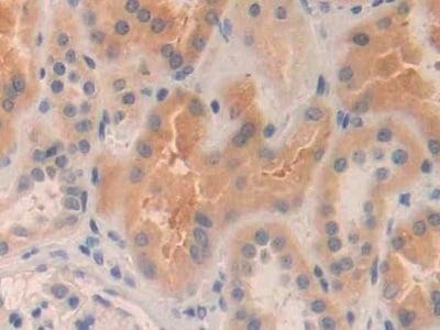 Immunohistochemistry (Formalin/PFA-fixed paraffin-embedded sections) - Anti-MMP24 antibody (ab233004)