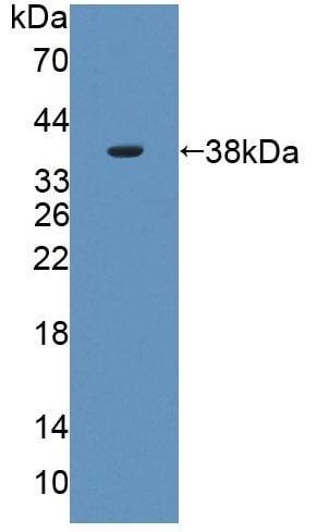 Western blot - Anti-PLSCR4 antibody (ab233005)
