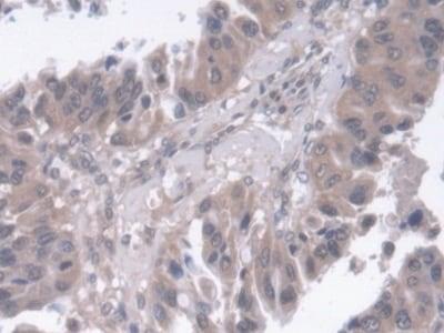 Immunohistochemistry (Formalin/PFA-fixed paraffin-embedded sections) - Anti-SMP30 antibody (ab233007)