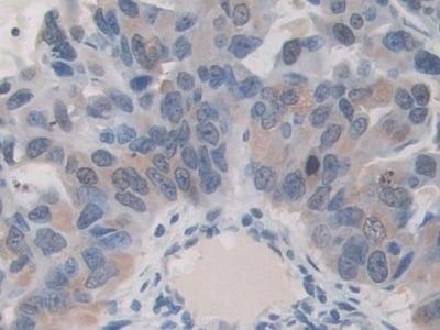 Immunohistochemistry (Formalin/PFA-fixed paraffin-embedded sections) - Anti-ITIH1/SHAP antibody (ab233032)