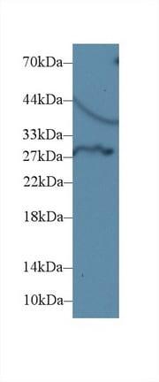 Western blot - Anti-Dio3 antibody (ab233035)