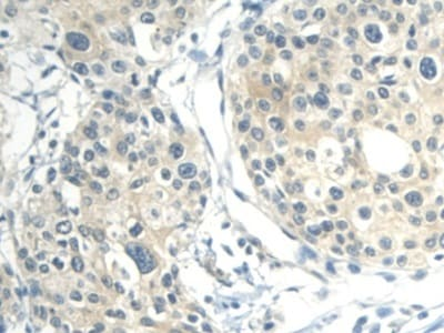 Immunohistochemistry (Formalin/PFA-fixed paraffin-embedded sections) - Anti-CALML3 antibody (ab233037)
